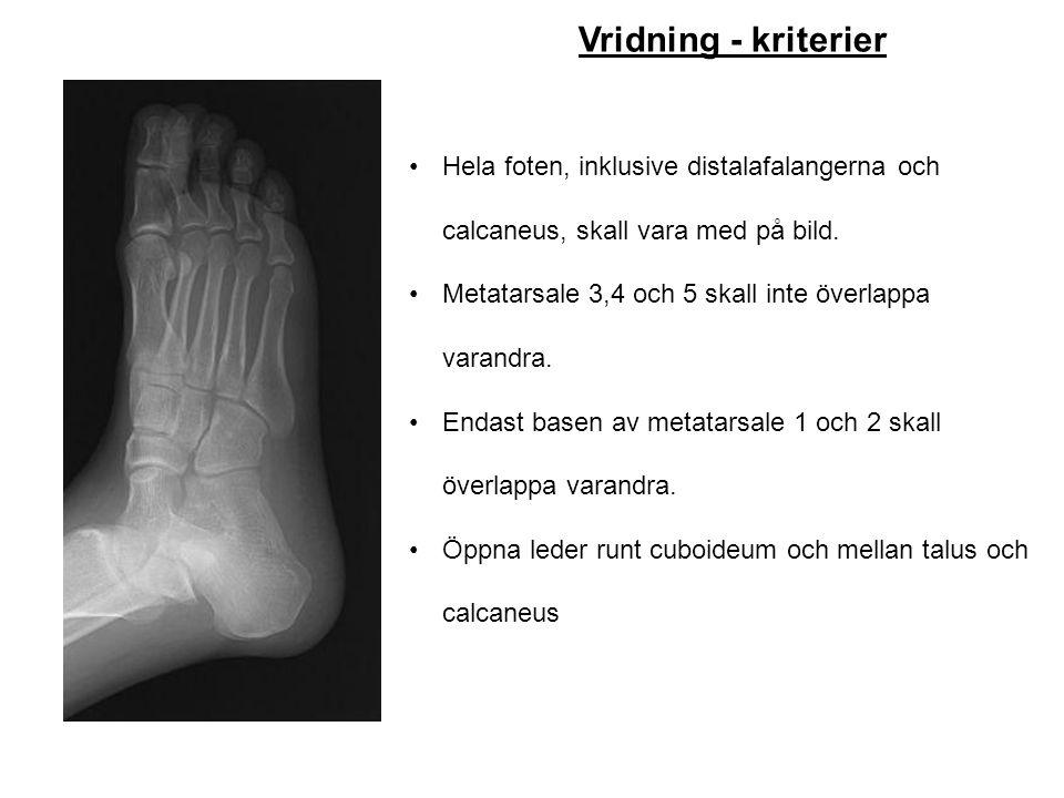 Vridning - kriterier Hela foten, inklusive distalafalangerna och calcaneus, skall vara med på bild.
