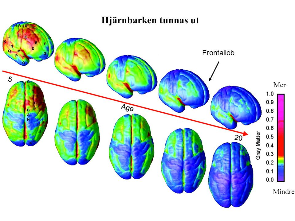 Hjärnbarken tunnas ut Frontallob Mer Mindre