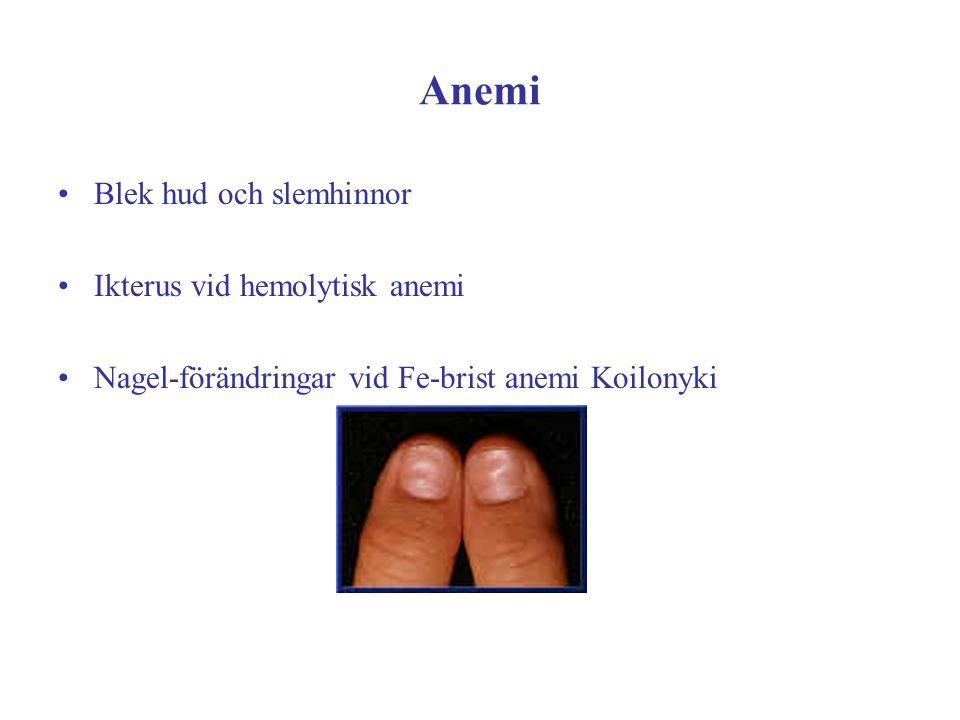 Anemi Blek hud och slemhinnor Ikterus vid hemolytisk anemi