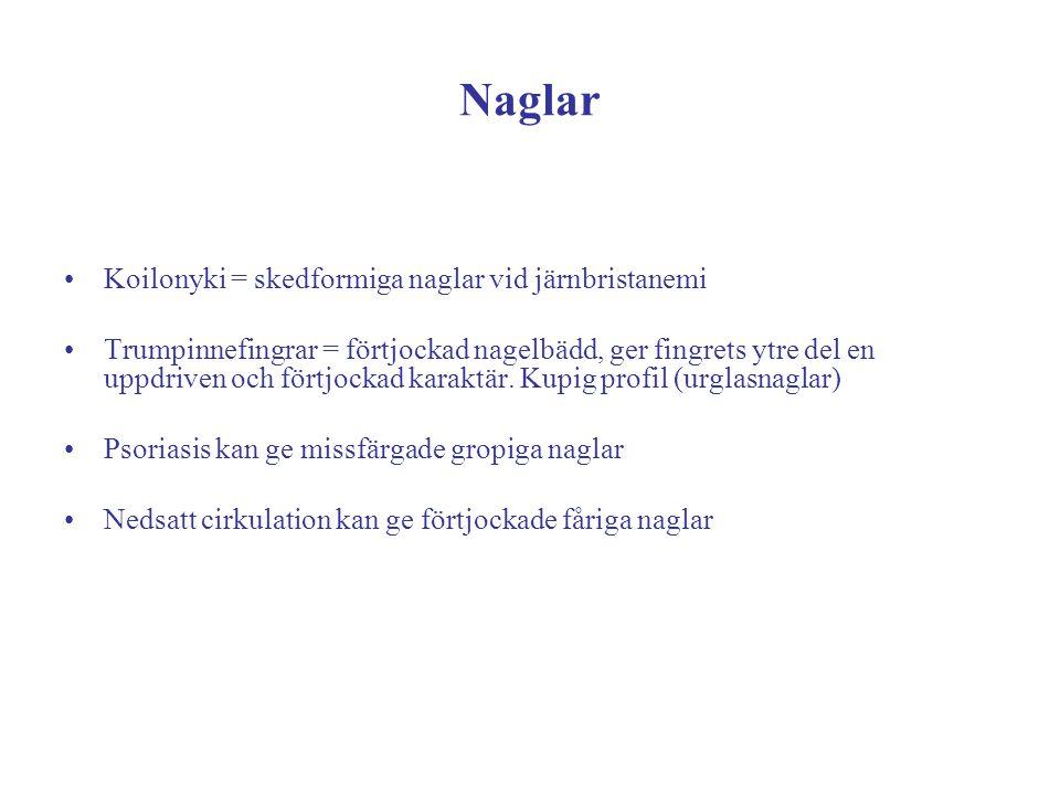 Naglar Koilonyki = skedformiga naglar vid järnbristanemi