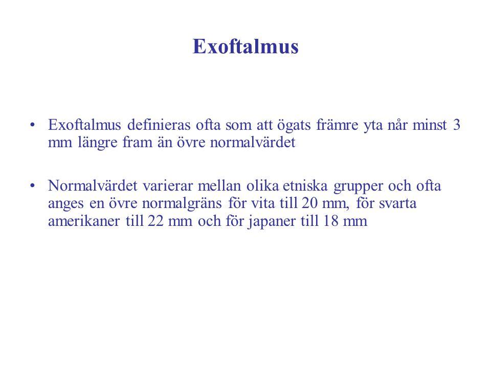 Exoftalmus Exoftalmus definieras ofta som att ögats främre yta når minst 3 mm längre fram än övre normalvärdet.