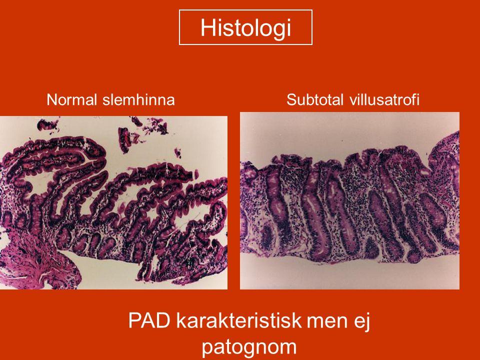 Normal slemhinna Subtotal villusatrofi