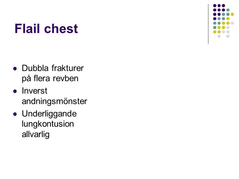Flail chest Dubbla frakturer på flera revben Inverst andningsmönster