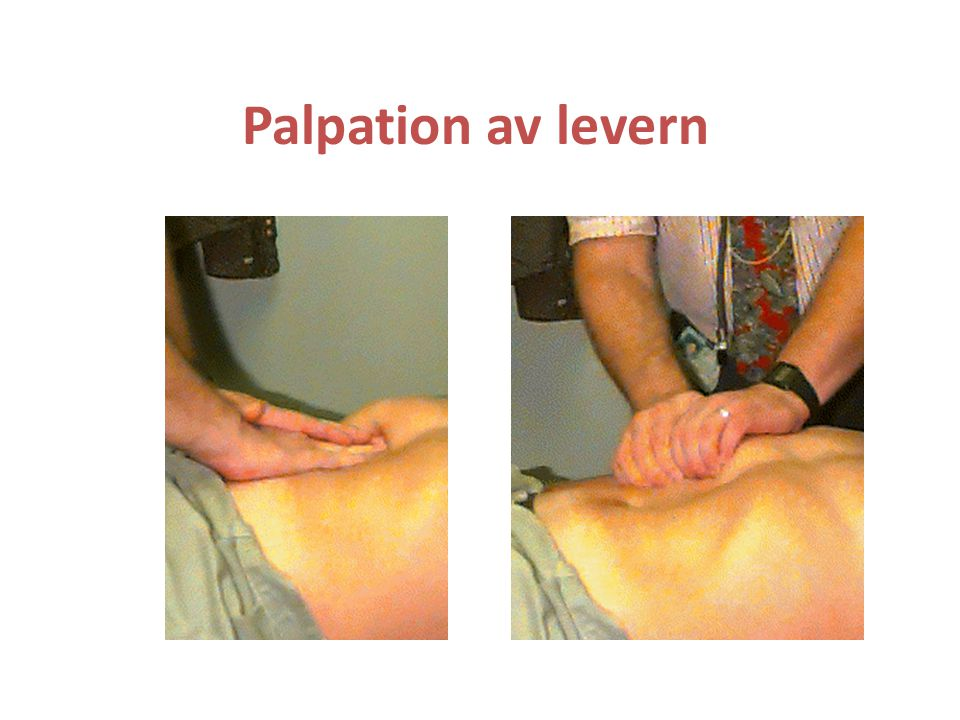 Palpation av levern
