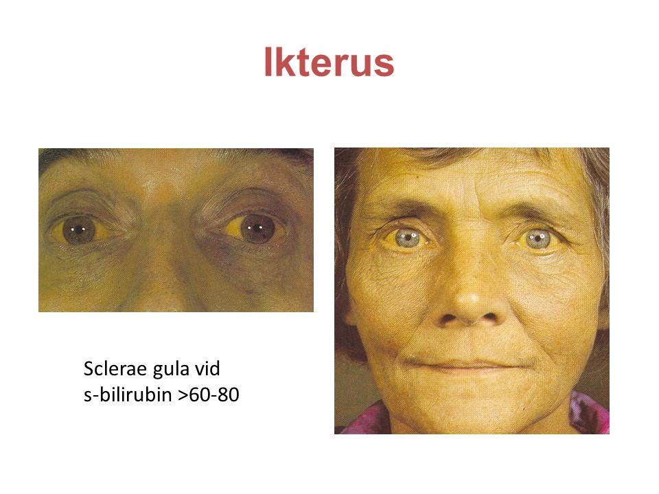 Ikterus Sclerae gula vid s-bilirubin >60-80