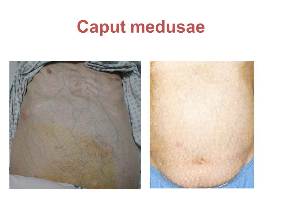 Caput medusae Ej Sahlis krans ses hos äldre män har inte med leversjukdom att göra
