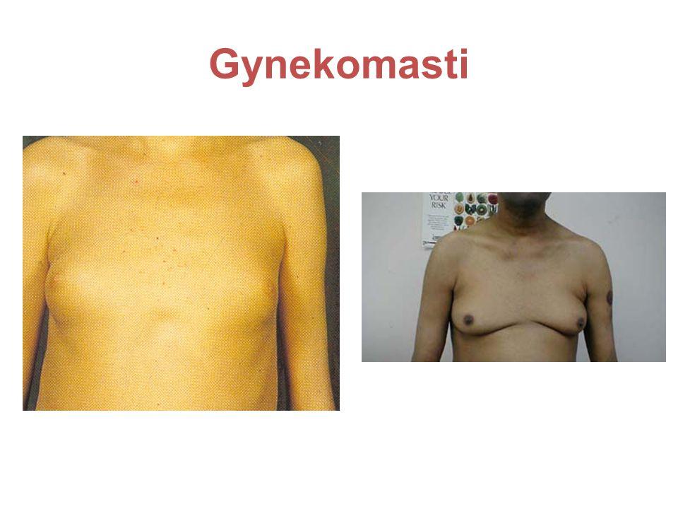 Gynekomasti Bröstkörteln är förstorad dels pga spironolakton