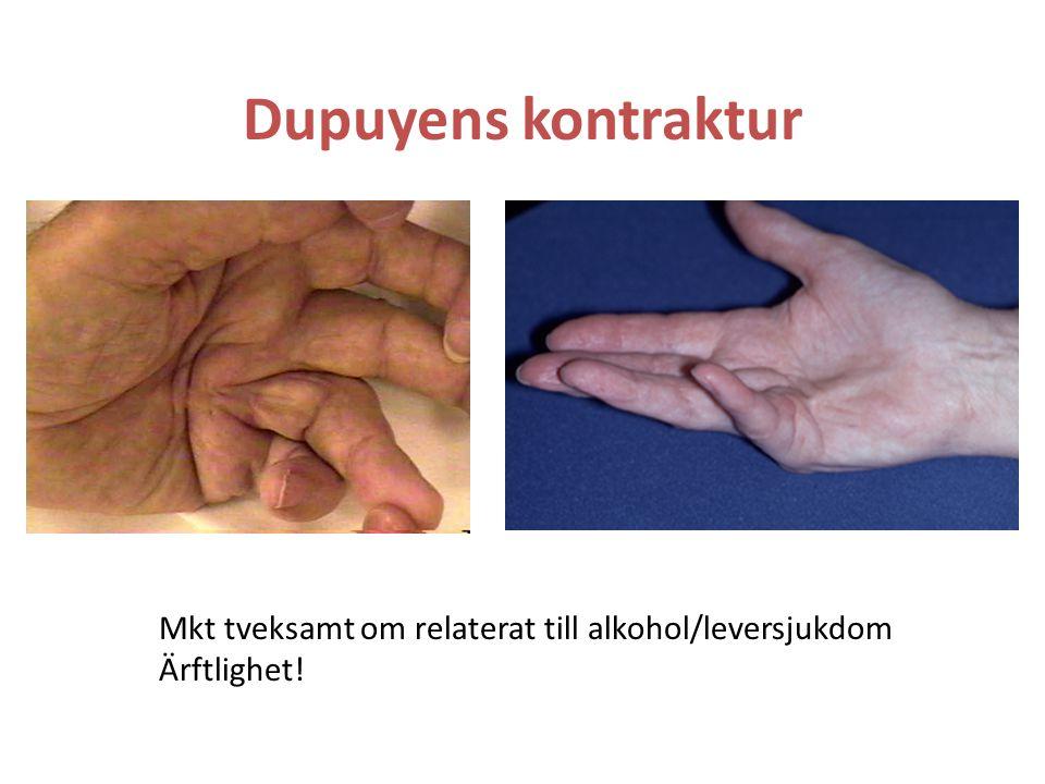 Dupuyens kontraktur Mkt tveksamt om relaterat till alkohol/leversjukdom Ärftlighet!