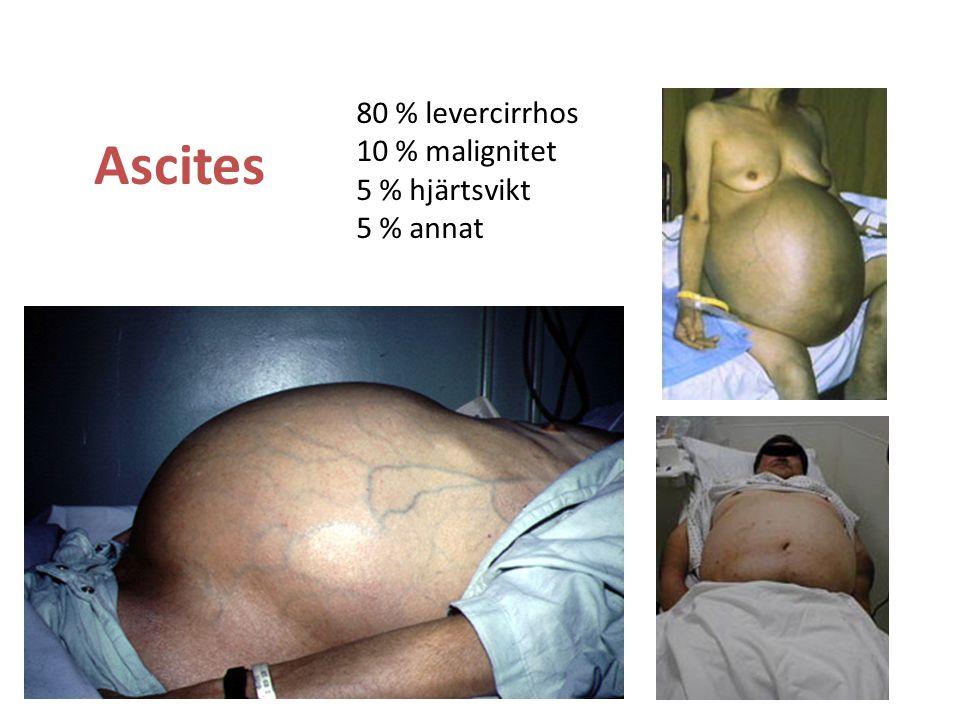 80 % levercirrhos 10 % malignitet 5 % hjärtsvikt 5 % annat Ascites