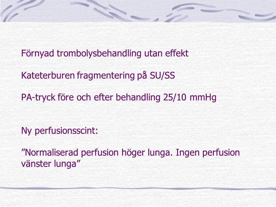 Förnyad trombolysbehandling utan effekt Kateterburen fragmentering på SU/SS PA-tryck före och efter behandling 25/10 mmHg Ny perfusionsscint: Normaliserad perfusion höger lunga.