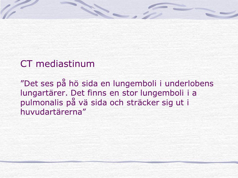 CT mediastinum Det ses på hö sida en lungemboli i underlobens lungartärer.
