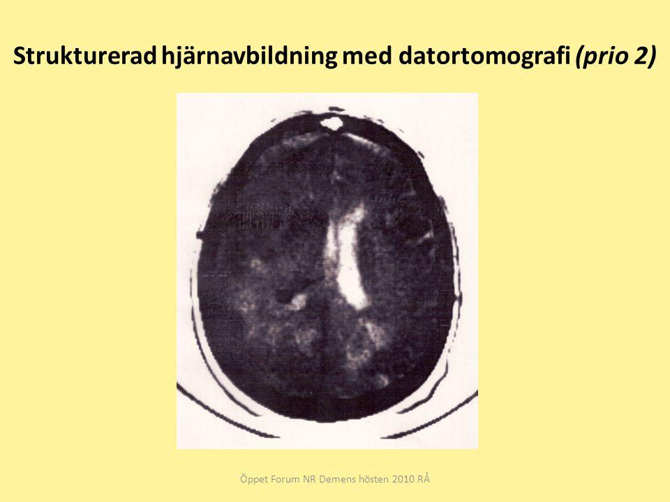 Strukturerad hjärnavbildning med datortomografi (prio 2)