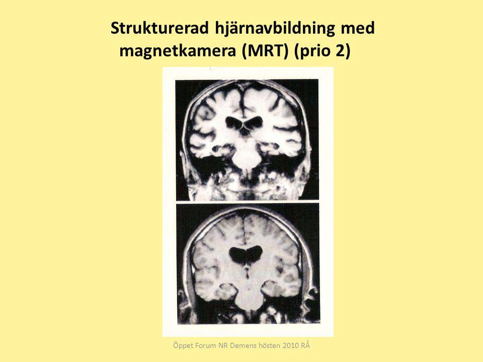 Strukturerad hjärnavbildning med magnetkamera (MRT) (prio 2)