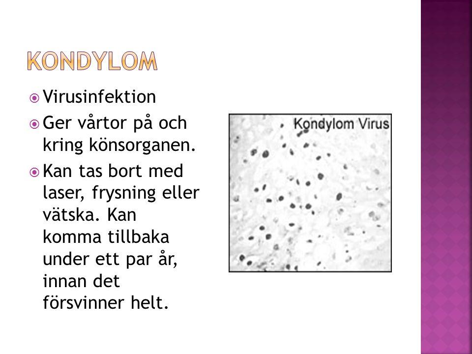 Kondylom Virusinfektion Ger vårtor på och kring könsorganen.