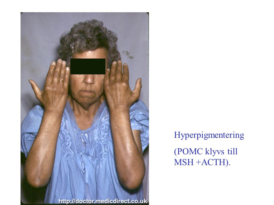 Hyperpigmentering (POMC klyvs till MSH +ACTH).
