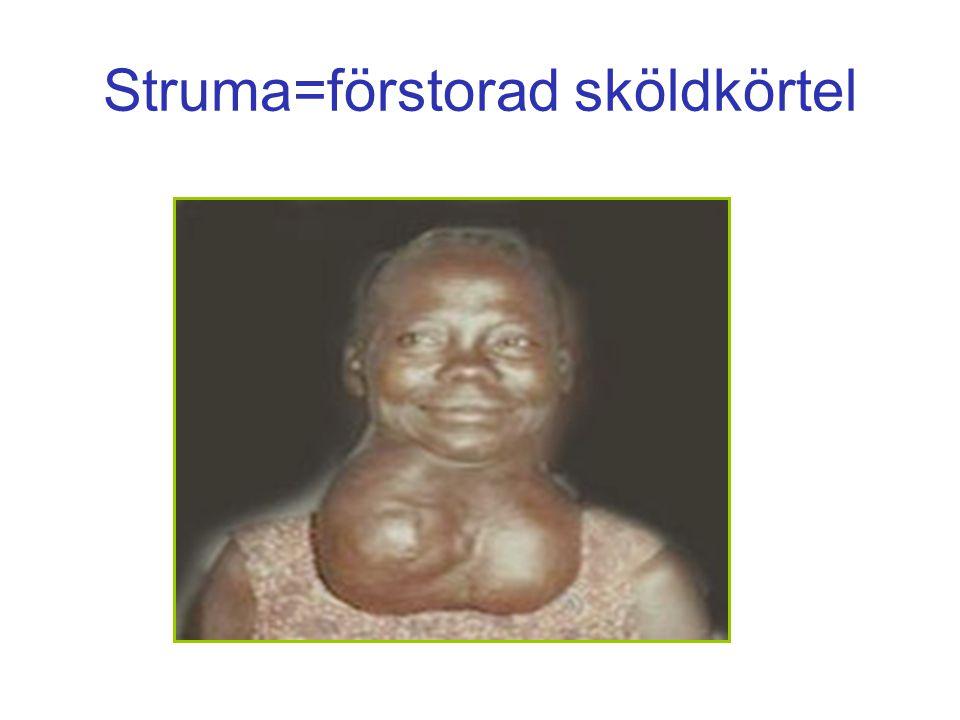 Struma=förstorad sköldkörtel