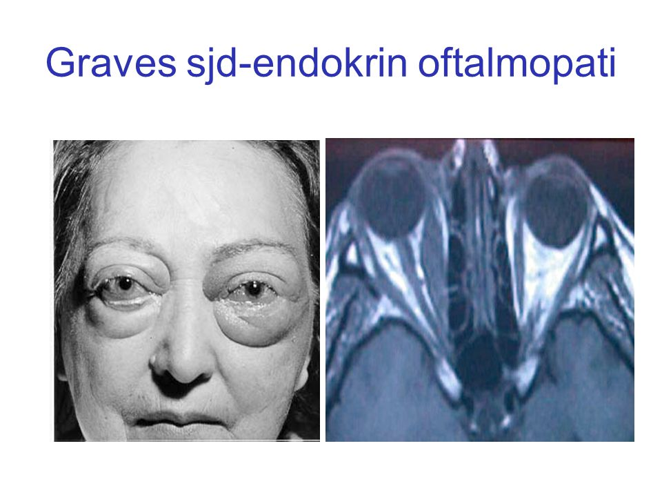 Graves sjd-endokrin oftalmopati