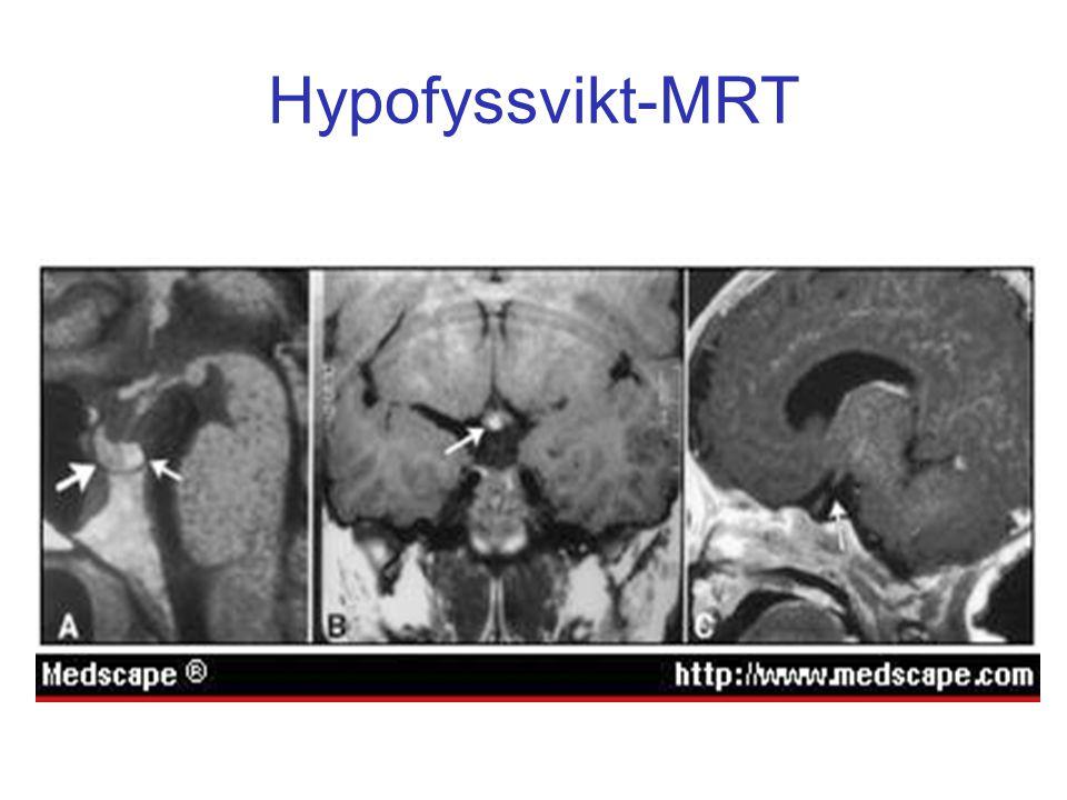 Hypofyssvikt-MRT