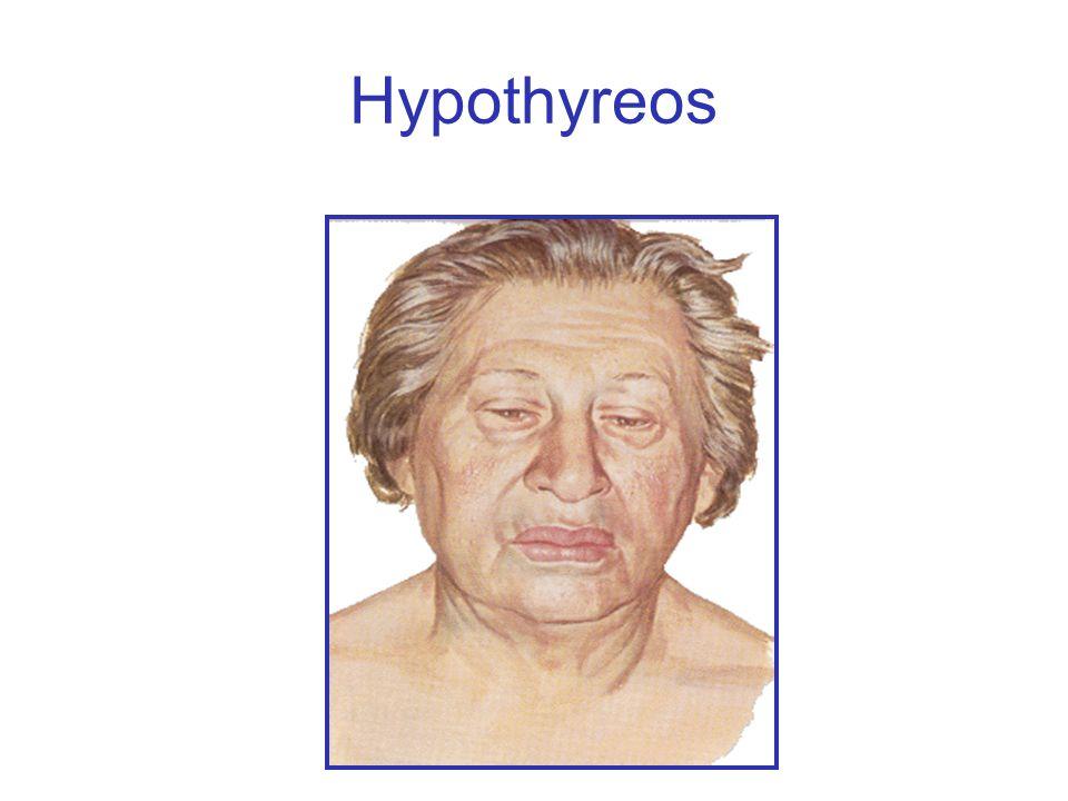 Hypothyreos