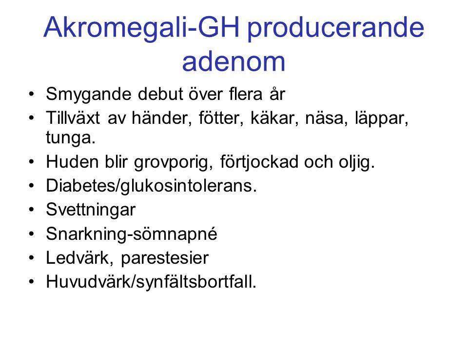 Akromegali-GH producerande adenom