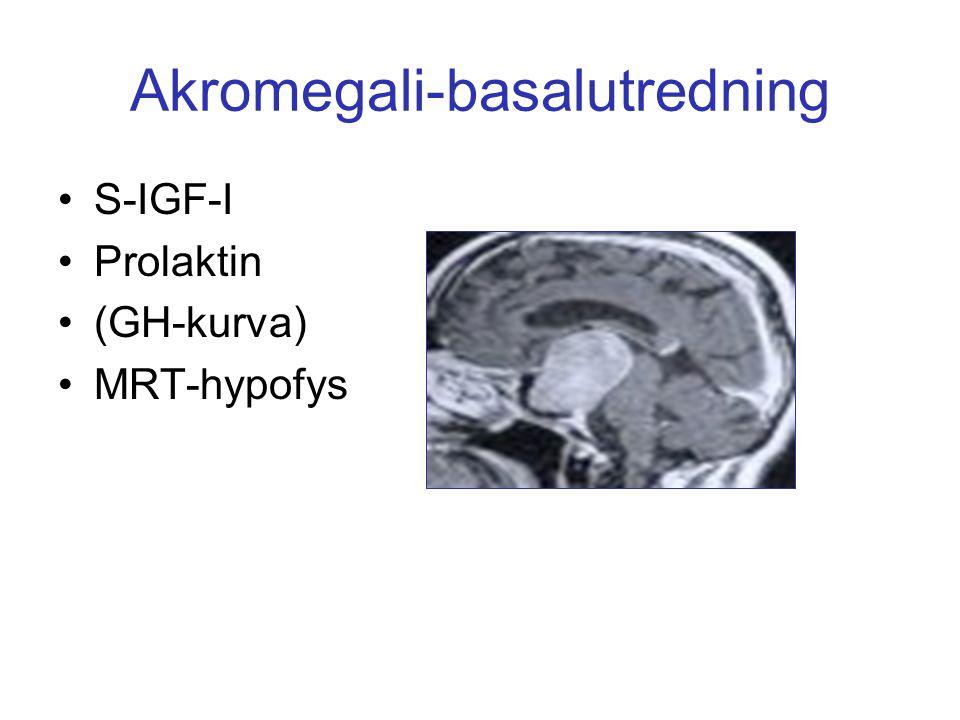 Akromegali-basalutredning