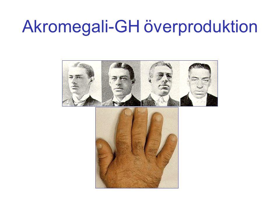 Akromegali-GH överproduktion