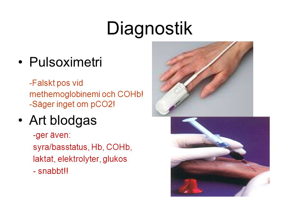 Diagnostik Pulsoximetri