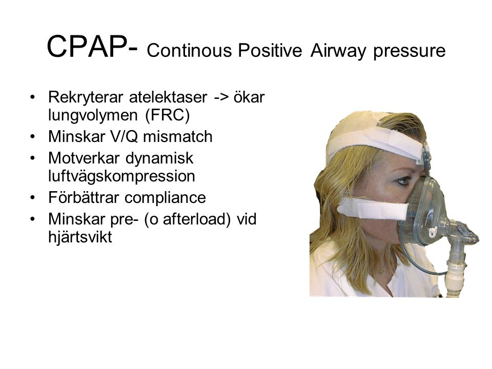 CPAP- Continous Positive Airway pressure