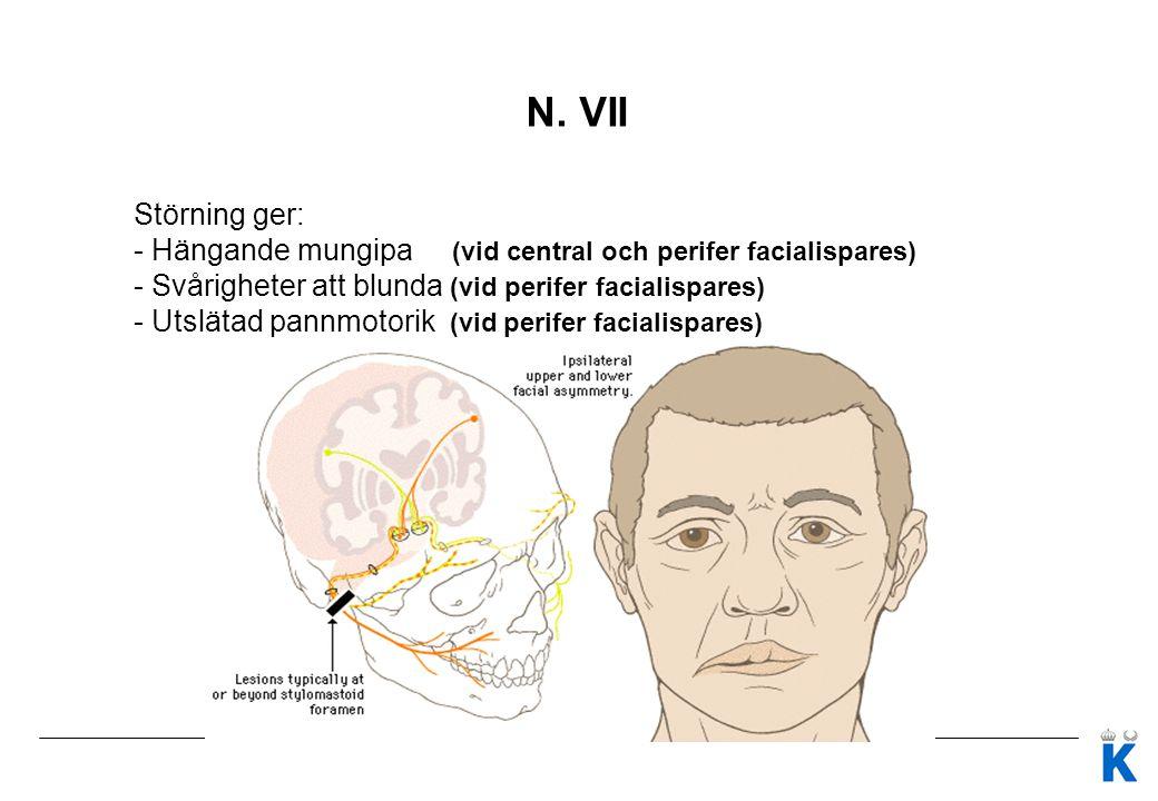 N. VII Störning ger: - Hängande mungipa (vid central och perifer facialispares) - Svårigheter att blunda (vid perifer facialispares)