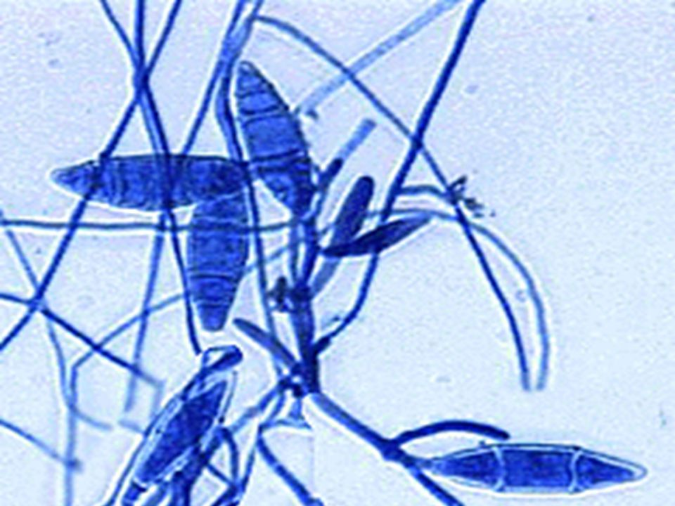 Bild av Microsporon-art