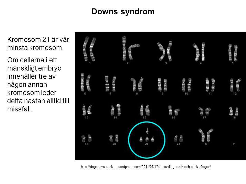 Downs syndrom Kromosom 21 är vår minsta kromosom.