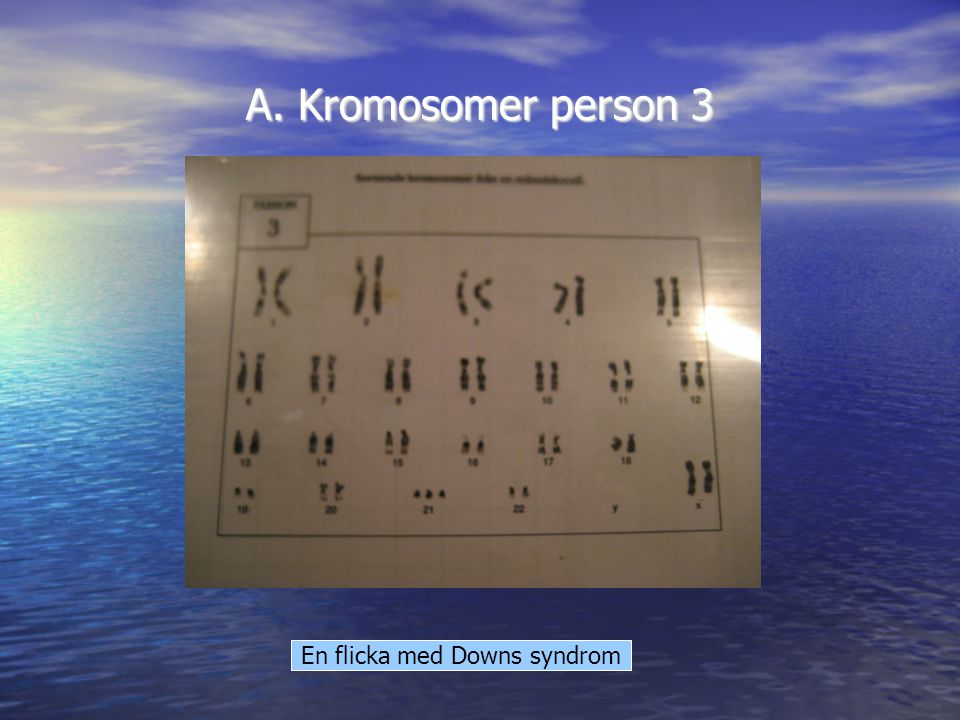 En flicka med Downs syndrom
