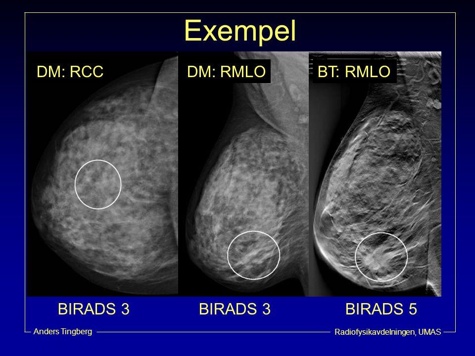 Exempel DM: RCC DM: RMLO BT: RMLO BIRADS 3 BIRADS 3 BIRADS 5