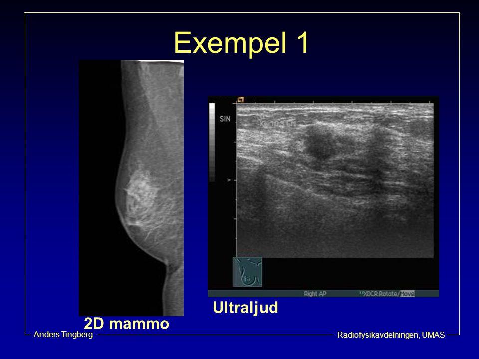 Exempel 1 Ultraljud 2D mammo