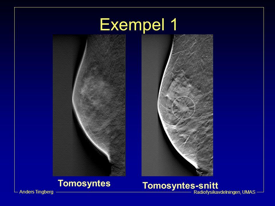 Exempel 1 Tomosyntes-snitt Tomosyntes