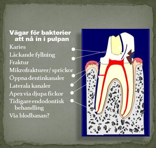 Vägar för bakterier att nå in i pulpan