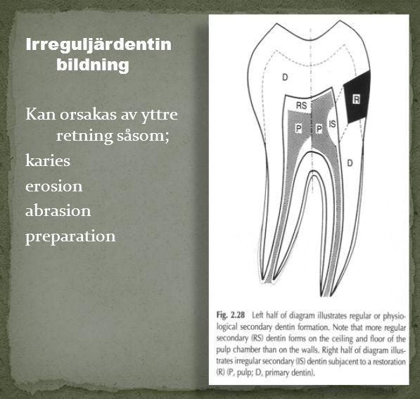 Kan orsakas av yttre retning såsom; karies erosion abrasion