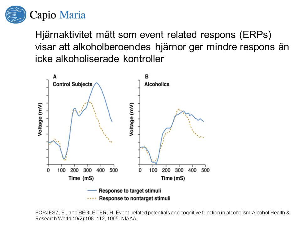 Hjärnaktivitet mätt som event related respons (ERPs) visar att alkoholberoendes hjärnor ger mindre respons än icke alkoholiserade kontroller