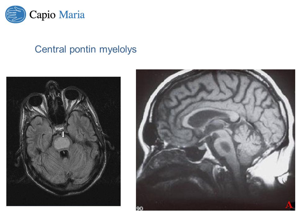 Central pontin myelolys