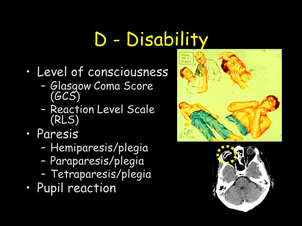 D - Disability Level of consciousness Paresis Pupil reaction