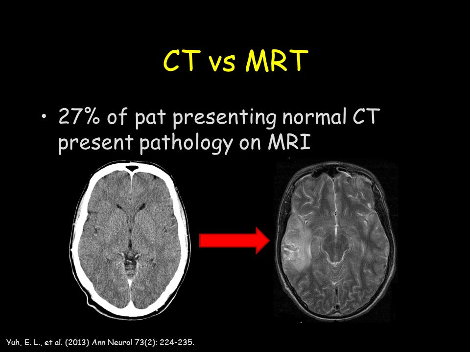 CT vs MRT 27% of pat presenting normal CT present pathology on MRI
