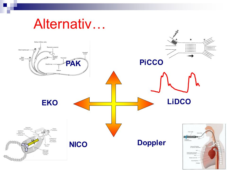 Alternativ… PAK PiCCO EKO LiDCO Doppler NICO