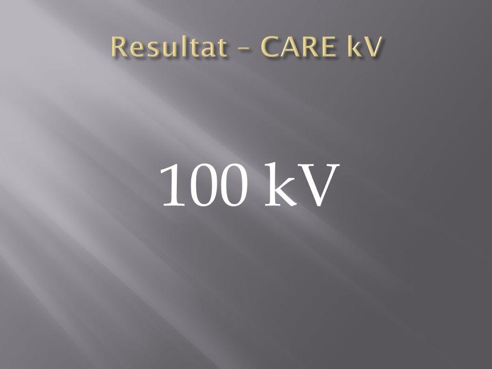 Resultat – CARE kV 100 kV Alla 20 pat på Flash kördes på 100kV