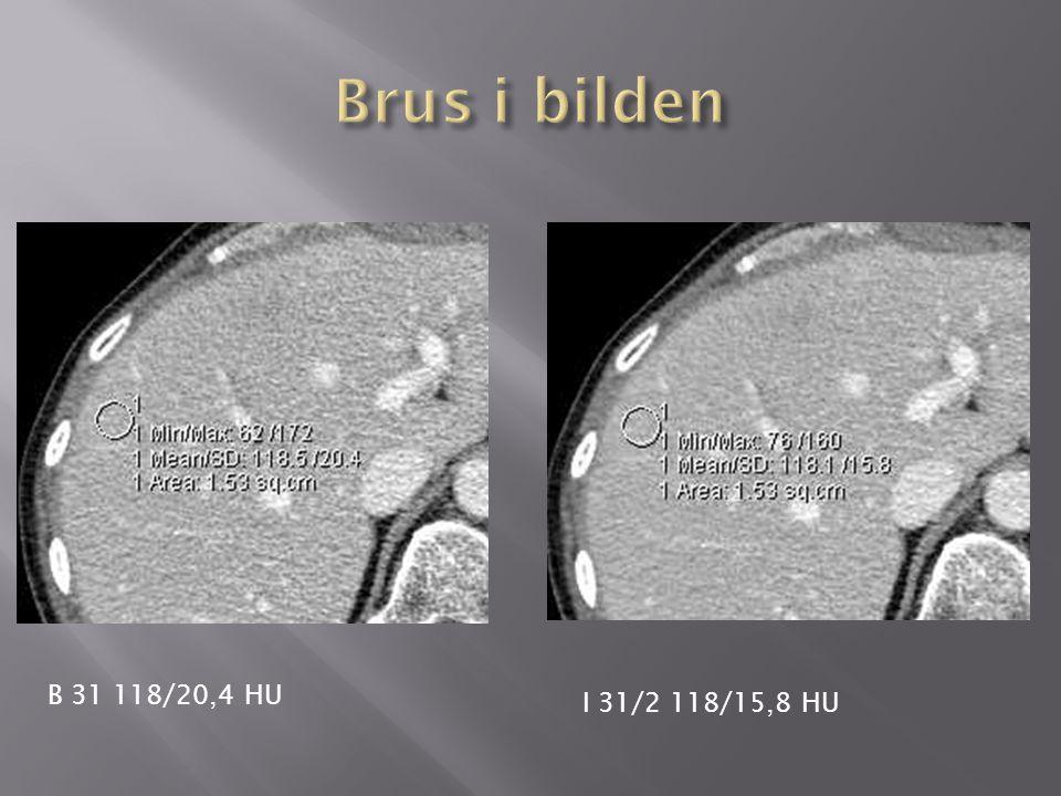 Brus i bilden B 31 118/20,4 HU I 31/2 118/15,8 HU