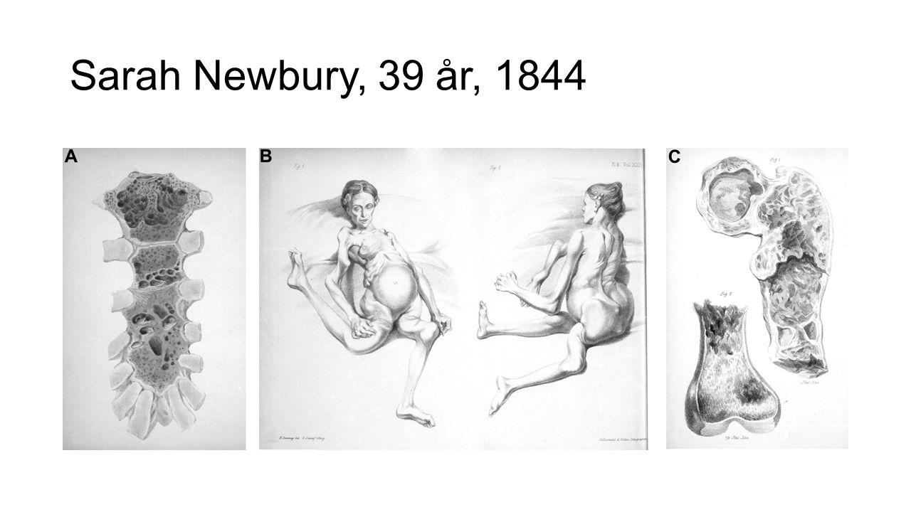 Sarah Newbury, 39 år, 1844