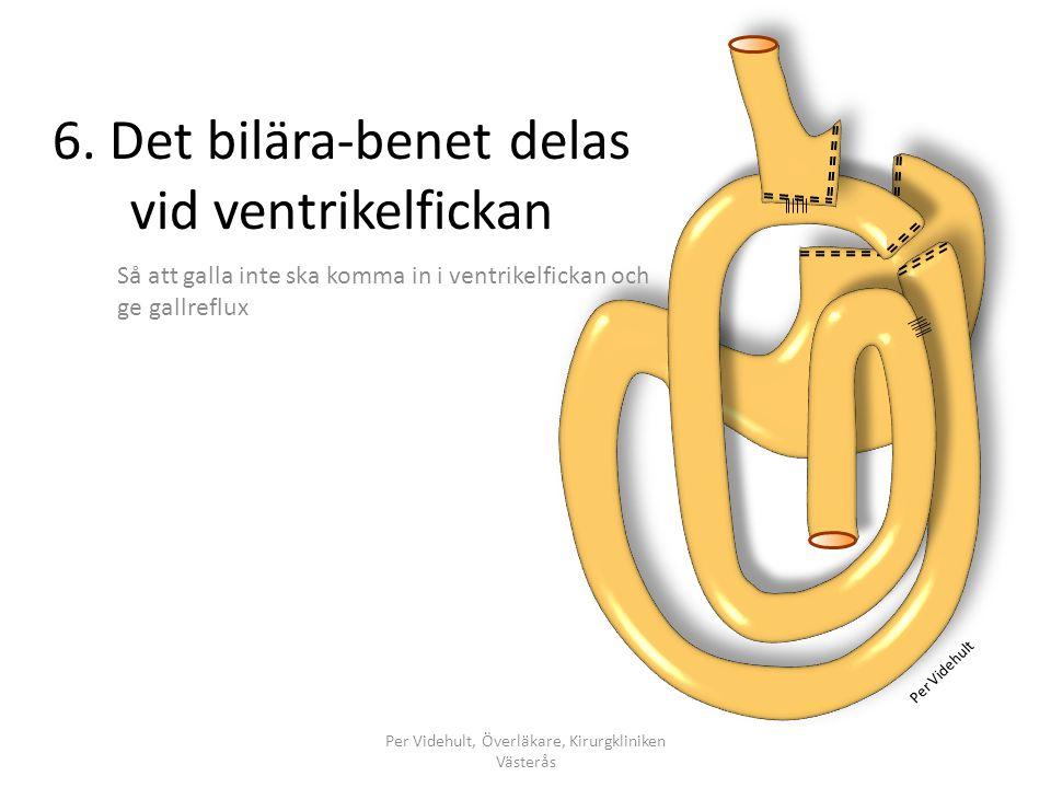 6. Det bilära-benet delas vid ventrikelfickan