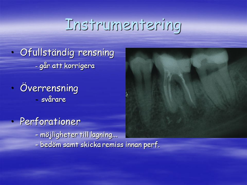 Instrumentering Ofullständig rensning Överrensning Perforationer