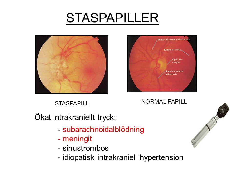 STASPAPILLER Ökat intrakraniellt tryck: