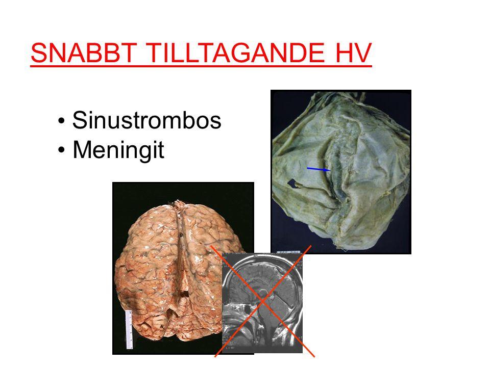 SNABBT TILLTAGANDE HV Sinustrombos Meningit