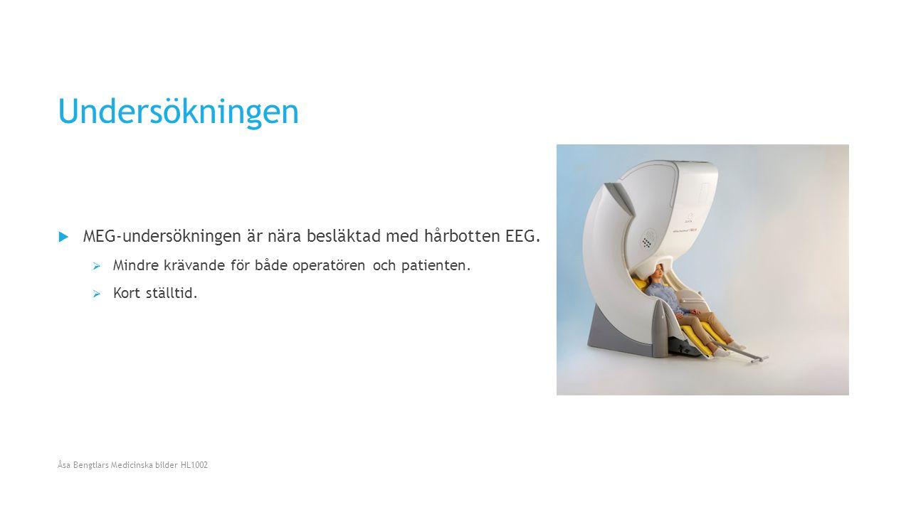 Undersökningen MEG-undersökningen är nära besläktad med hårbotten EEG.
